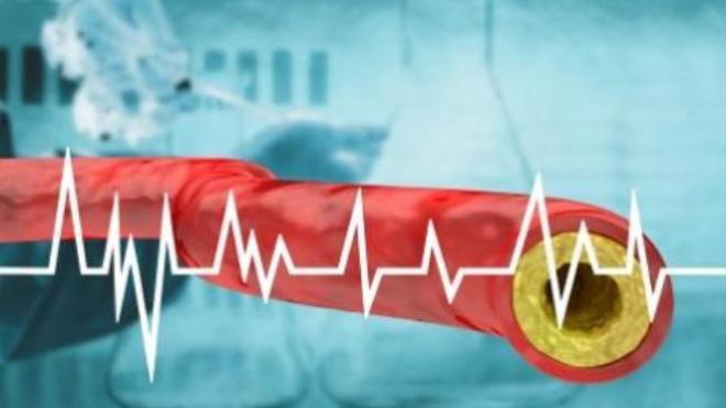 Ανεβασμένη χοληστερίνη: Καλύτερο το μοσχάρι από το κοτόπουλο;