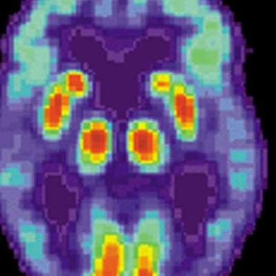 Bağırsaktaki anormal proteinler Alzheimer hastalığının gelişimine neden olabilir