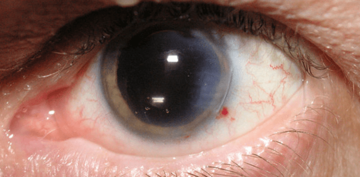 Cataract treatment options