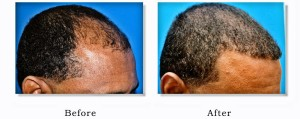 ethnic hair loss