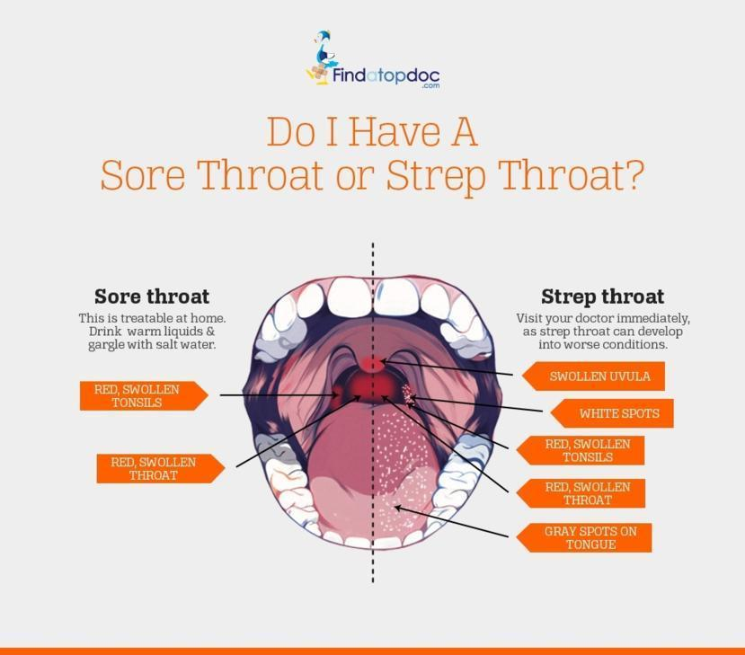 Is it A Strep Throat?