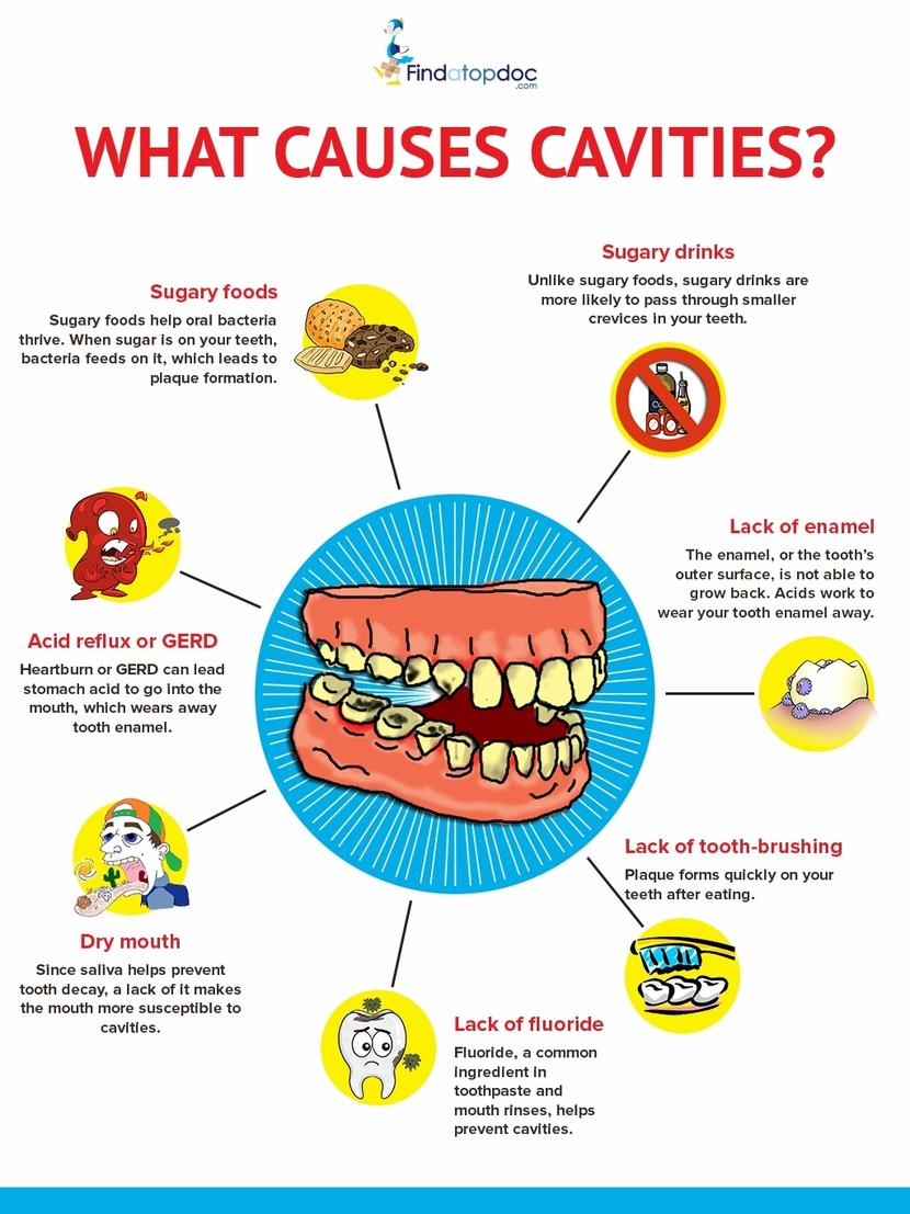 Cavities/ Tooth Decay: Symptoms Causes Treatment and ...
