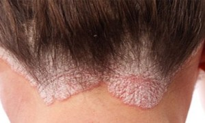 How To Treat Dry Skin On The Scalp