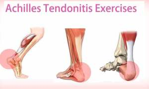 achilles-tendonitis-exercises