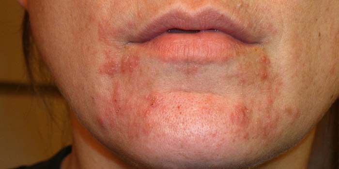 Staph Inside Infection Nose