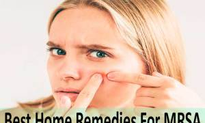 Best Home Remedies For MRSA