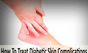 How To Treat Diabetic Skin Complications