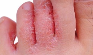 9 Best Home Remedies For Skin Fungus