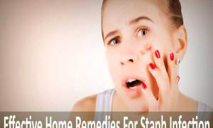 6 Effective Home Remedies For Staph Infection