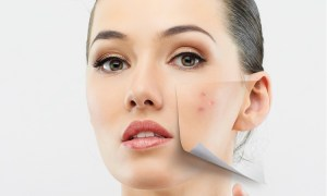 Best Home Remedies For Blackheads And Acne