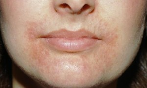 Home-Remedies-For-Perioral-Dermatitis