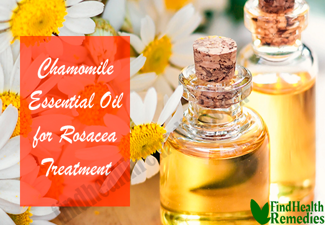 chamomile-essential-oil-for-rosacea-treatment