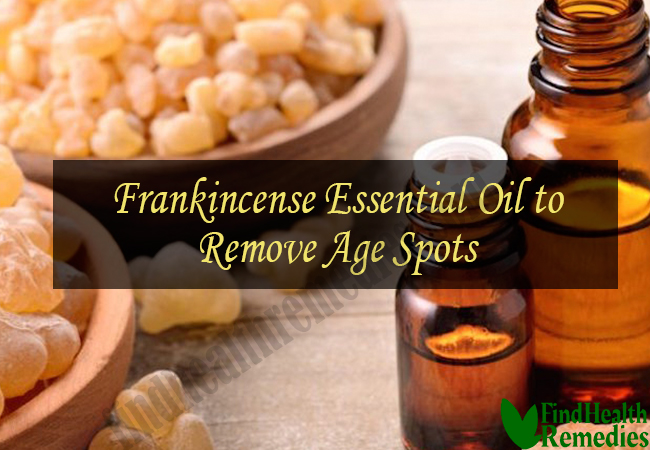 frankincense-essential-oil-to-remove-age-spots
