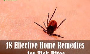 18 Effective Home Remedies for tick Bites