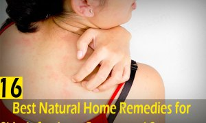 16-Best-Natural-Home-Remedies-for-Skin-Infection---Causes-and-Symptoms
