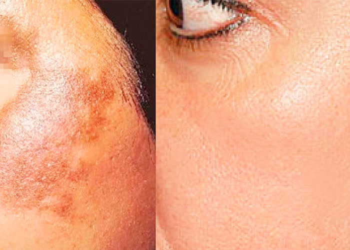 Vitamin C for Treating Skin Discoloration