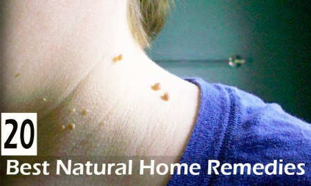 20-Best-Natural-Home-Remedies-to-Remove-Skin-Tags