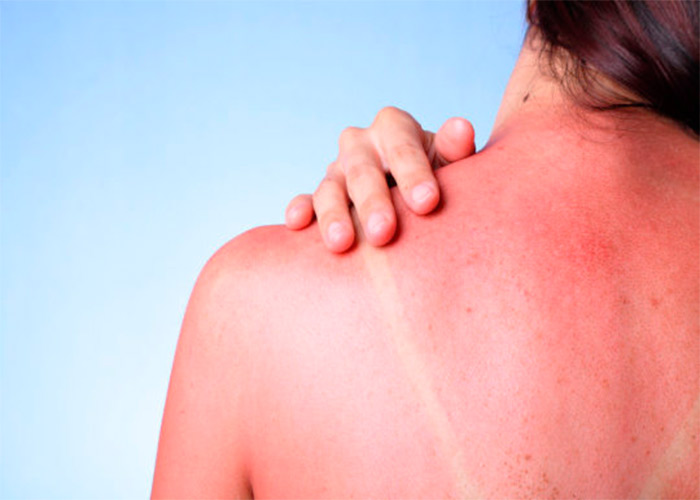 Vinegar to Treat Sunburns