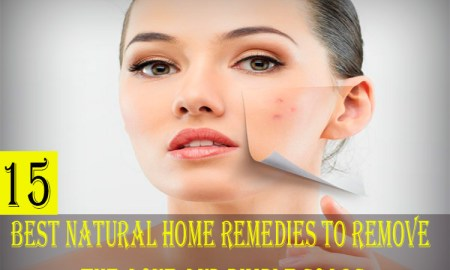 15 Best Natural Home Remedies To Remove The Acne And Pimple Scars