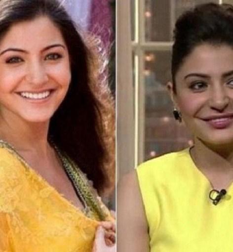 Anushka Sharma Bollywood Actress Plastic Surgery