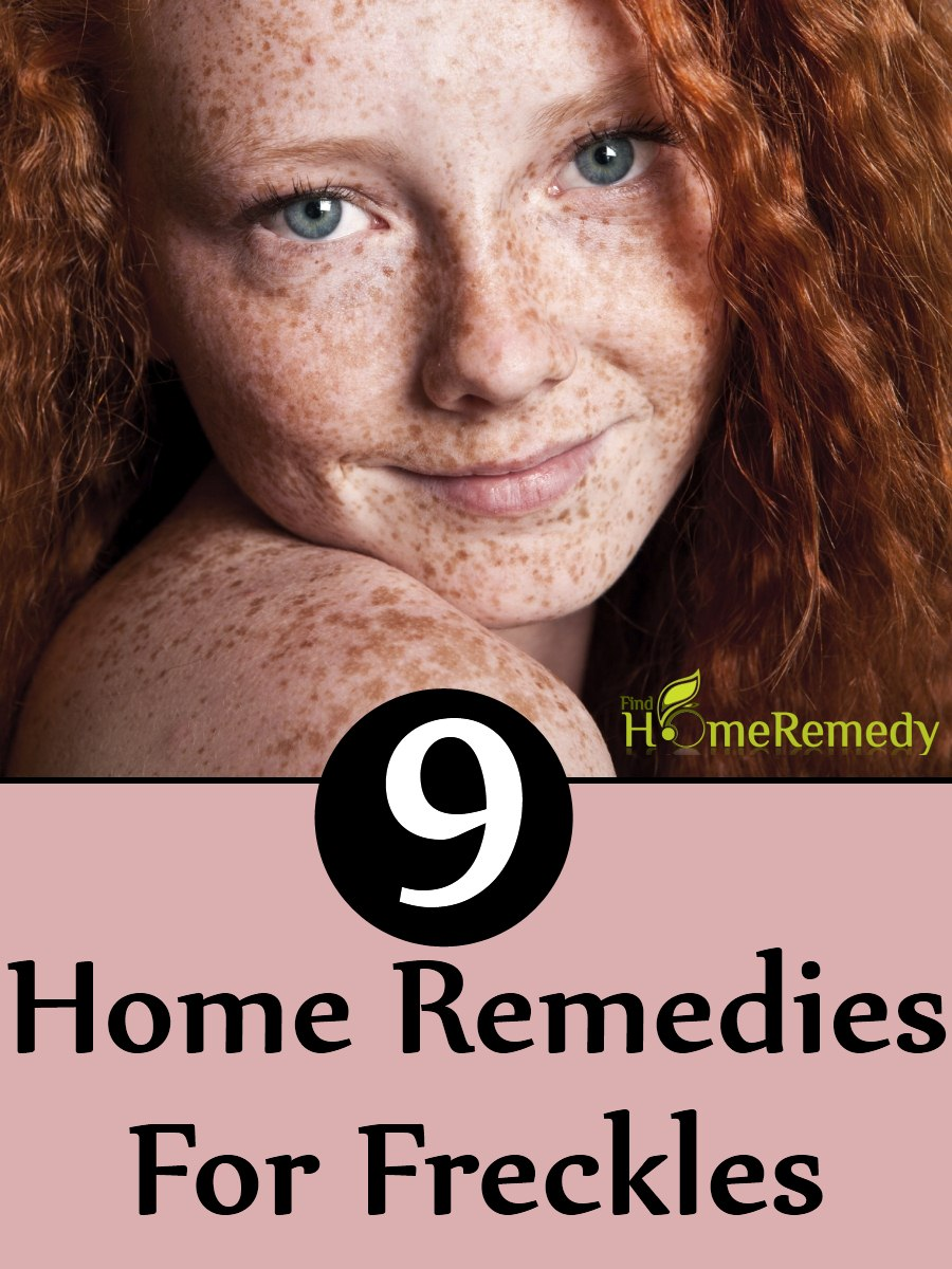 Say Goodbye To Freckles With 9 Home Remedies