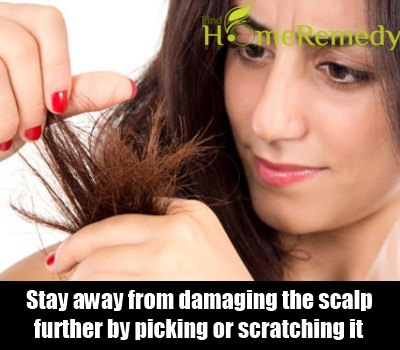Avoid Damaging The Scalp Further