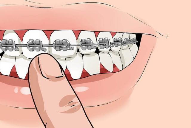 Fix Your Braces Well