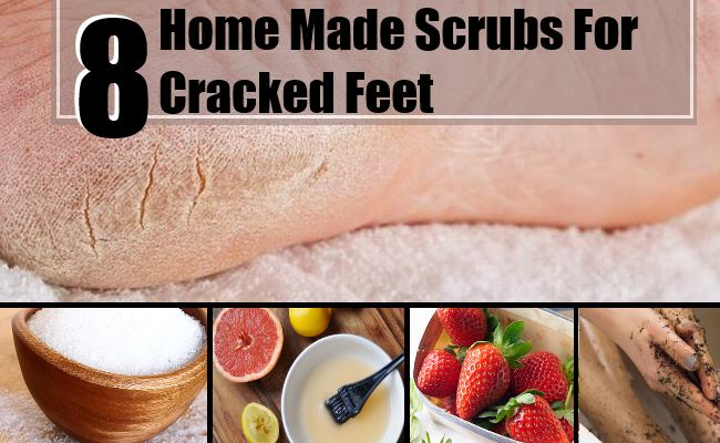 Cracked Feet