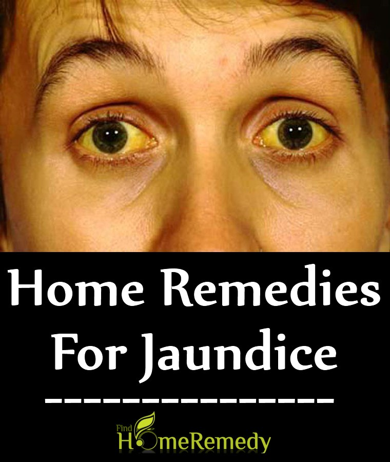 Home Remedies For Jaundice Natural Treatments Cure For Jaundice - Best home remedies for jaundice its causes and symptoms