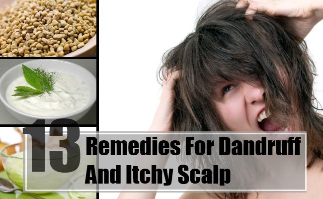 Dandruff And Itchy Scalp