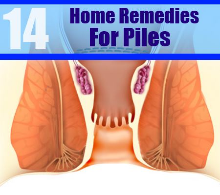 14 home remedies for piles
