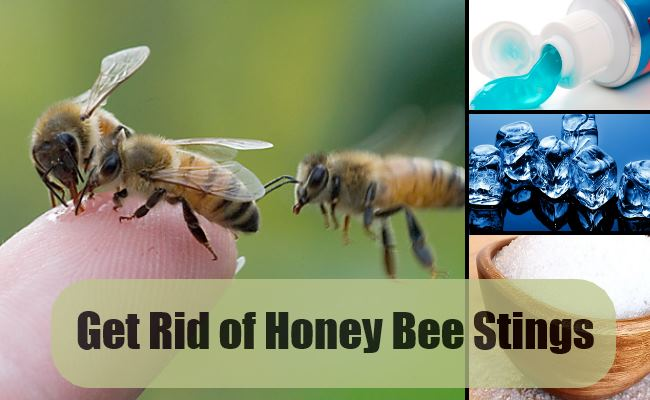 Get Rid of Honey Bee Stings