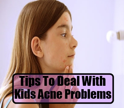 Tips To Deal With Kids Acne Problems
