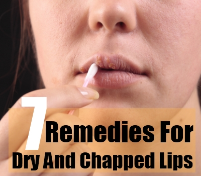 Dry And Chapped Lips