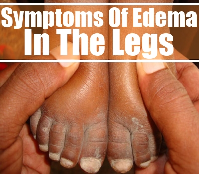 Edema In The Legs