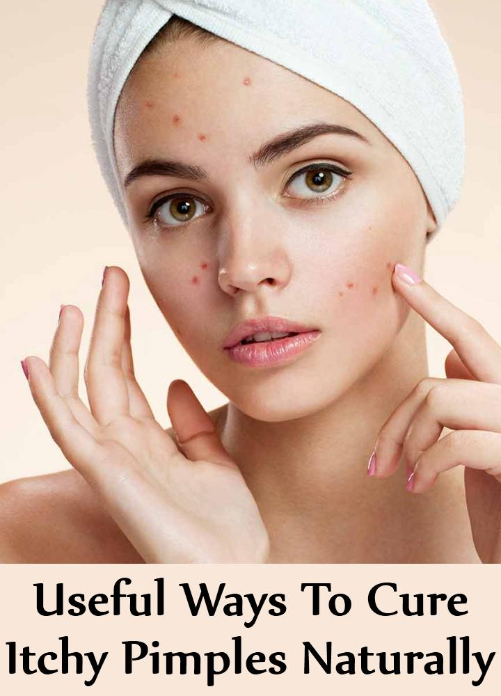 Ways To Cure Itchy Pimples Naturally