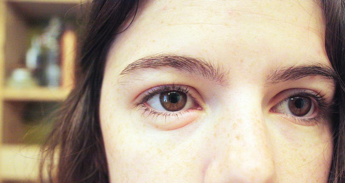 11 Home Remedies For Swollen Eyes