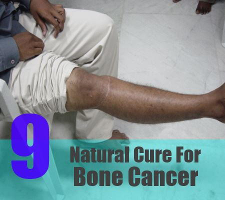 9 natural cure for bone cancer