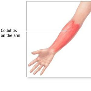 Natural Cure for cellulitis