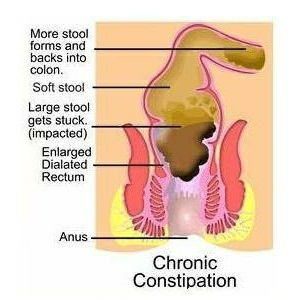 Cure constipation