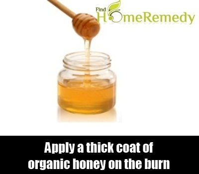 10 Home Remedies For Burns On Hands - Natural Treatments