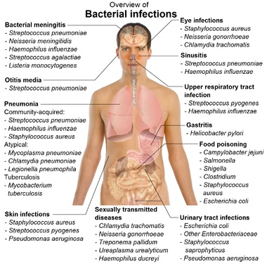 Cure Bacterial Infections