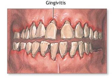 Cure gingivitis