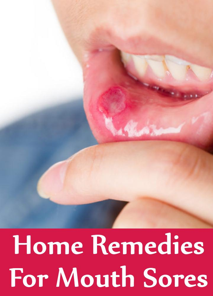 Natural Remedies Ulcers Mouth