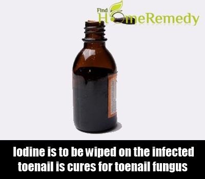Iodine Tincture