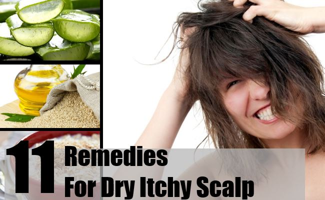 Remedies For Dry Itchy Scalp