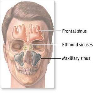 Cure sinus