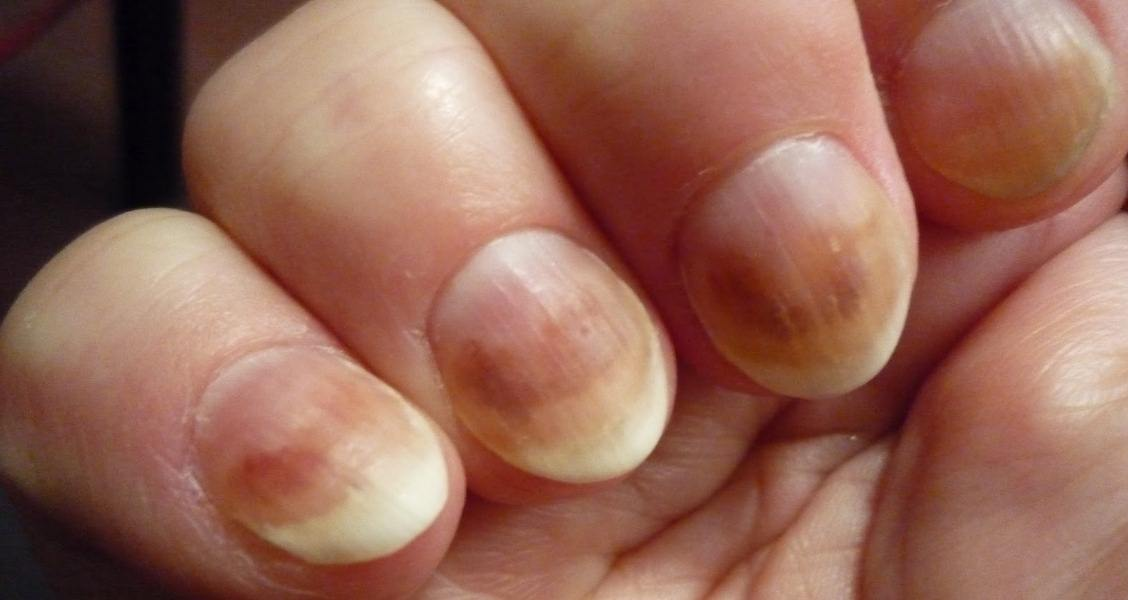 5 Home Remedies For Fingernail Fungus