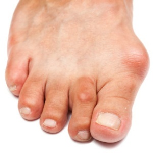 Cure bunions
