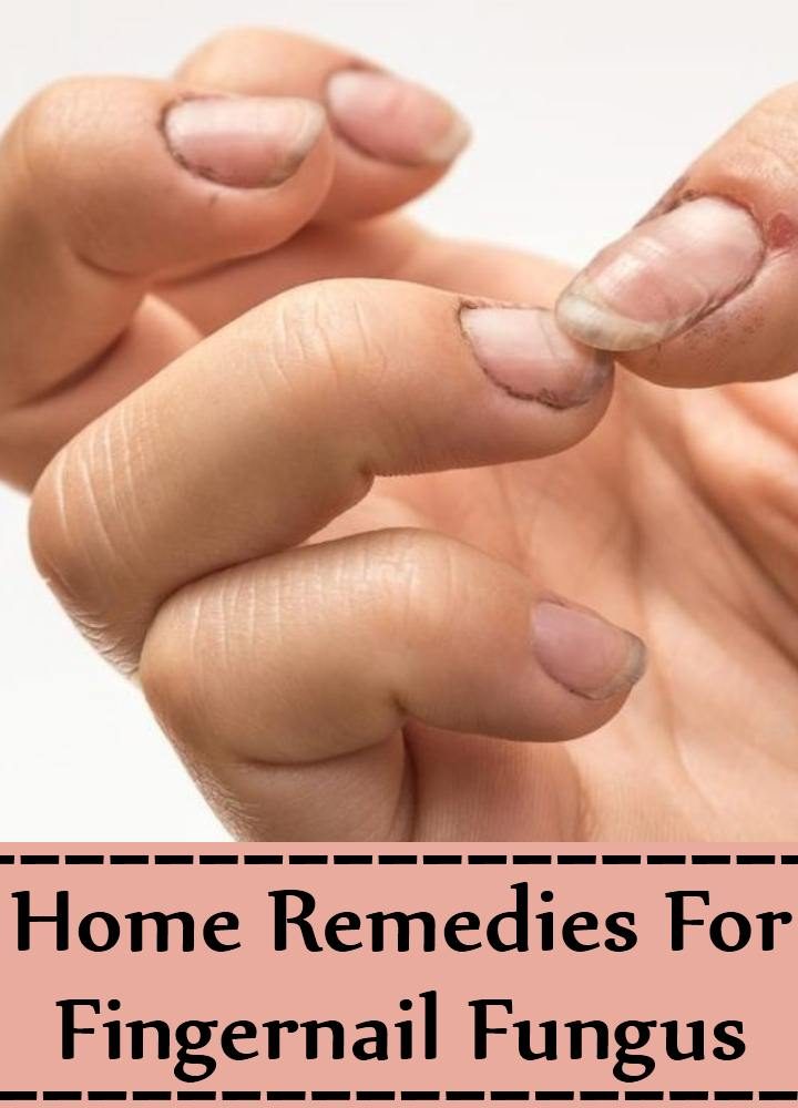 5 Home Remedies For Fingernail Fungus - Natural Treatments & Cure ...